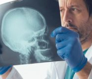 simptomi tumora