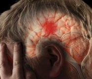 moždani udar